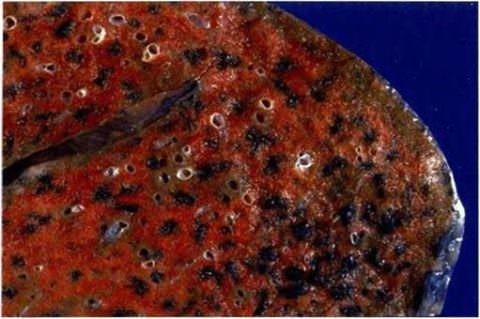 Макропрепарат: отмечается очаговая пигментация черного цвета