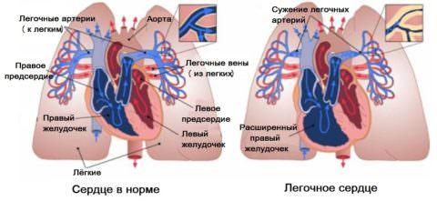 По мере прогрессирования в патологический процесс вовлекается сердечно-сосудистая система