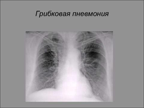 Рентген-снимок при грибковой пневмонии