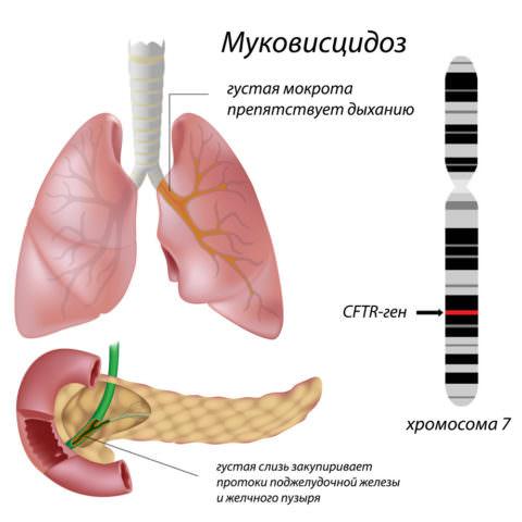 Локация гена, кодирующего дефектный белок при муковисцидозе