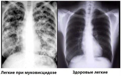 Рентгенологическая картина