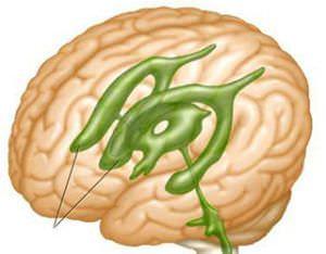 Асимметрия боковых желудочков головного мозга у детей и взрослых