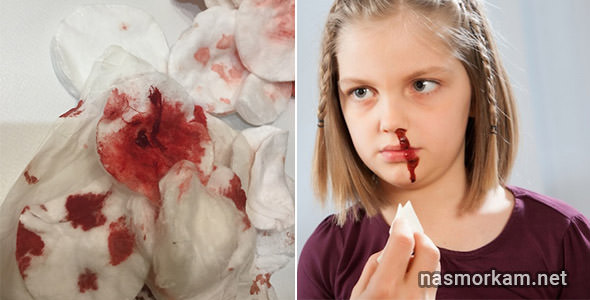 Из носа сгустки крови: причины. почему образуются? методы терапии