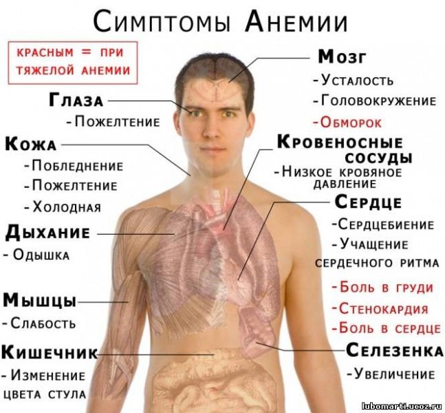 Основные симптомы анемии и ее лечение