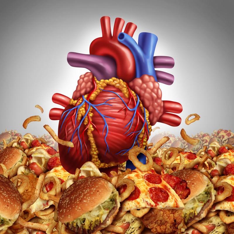 Как лечить холестериновые бляшки в сосудах шеи