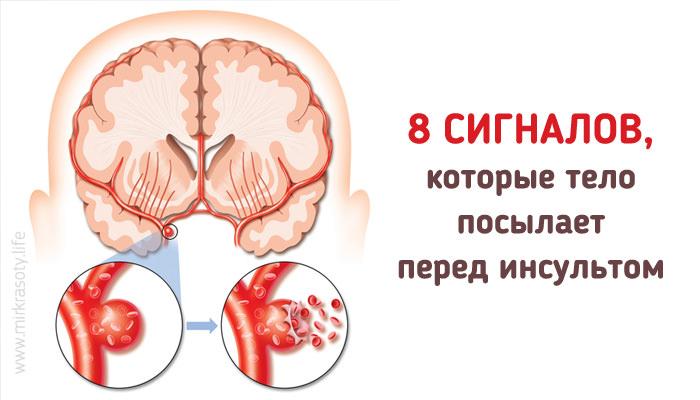 Признаки инсульта у женщины, симптомы первые признаки у женщин. Инсульт – первая помощь, последствия инсульта