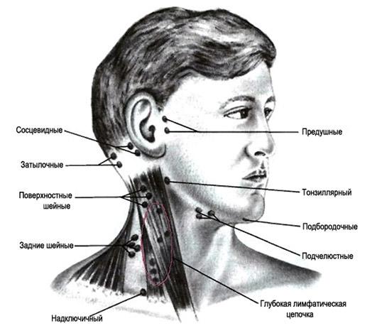 Что делать, если лимфоузел болит на шее под челюстью? Как лечить?