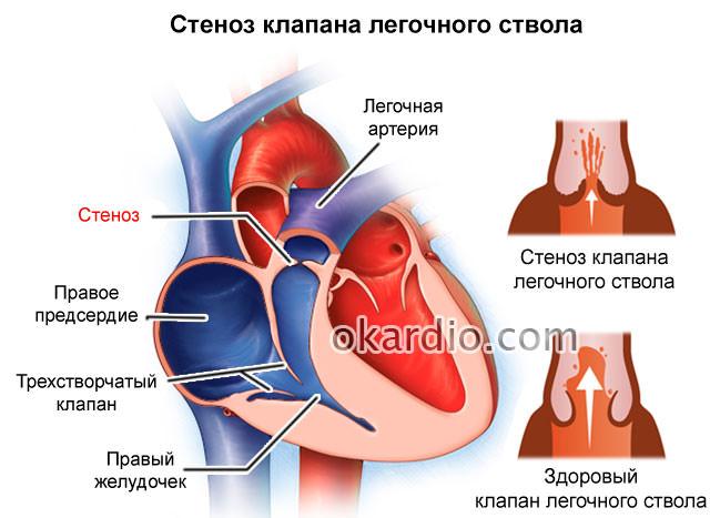 Какой звук у сердца. Сердечные тоны: понятие, аускультация, о чем говорят патологические