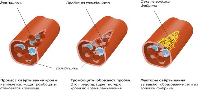 Антикоагулянты: прямые, непрямые, пероральные, список лекарств